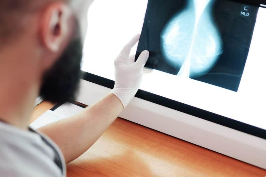 El Hospital del Mar da un paso de gigante en la lucha contra el cáncer de mama