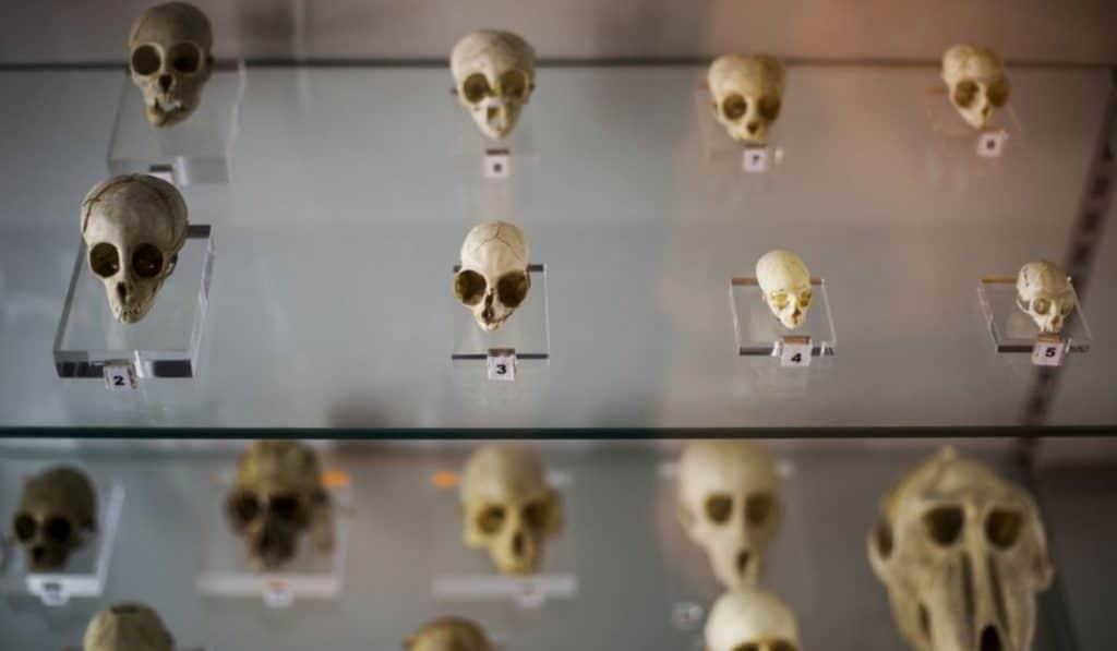 Muerte, morbo y ciencia en los museos de la Universidad Complutense de Madrid