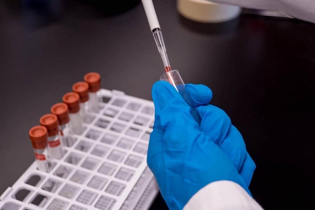 antibody tests